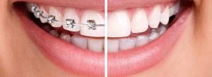 ortodont-big