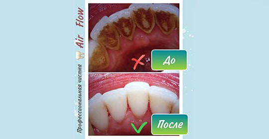 5 признаков того, что пора записаться на профессиональную чистку зубов AIR FLOW в Центр Семейной Медицины