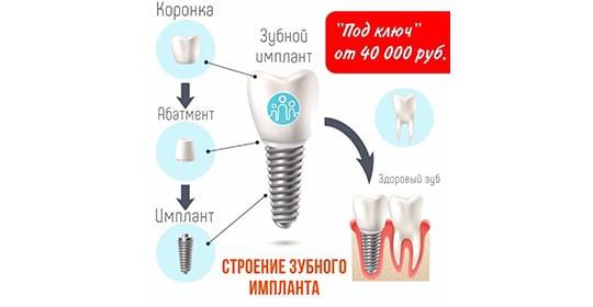 Имплантация «ПОД КЛЮЧ» от 40 000 руб.