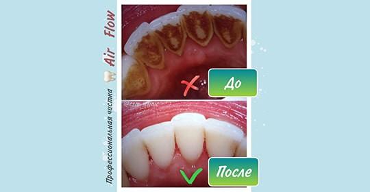 Профессиональная чистка зубов AirFlow